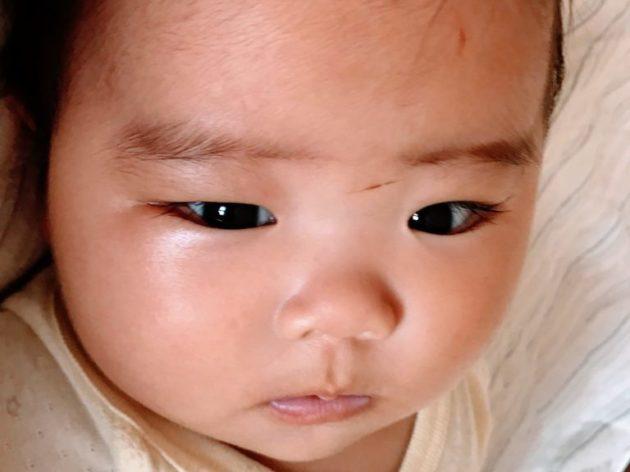3ヶ月検診で注射を4本注射して、ギャン泣きの写真